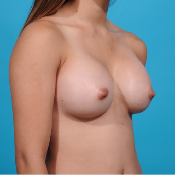 18-24 year old woman treated with Breast Implants after 3260650