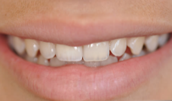 25-34 year old woman treated with Porcelain Veneers after 3804894