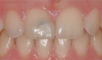25-34 year old woman treated with Porcelain Veneers before 3804894