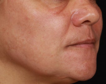 Cosmelan for Melasma after 1356173