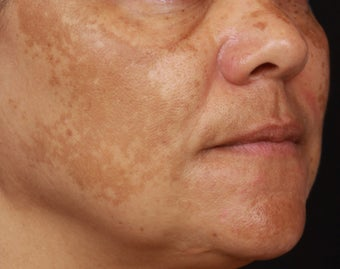 Cosmelan for Melasma before 1356173