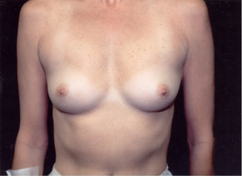 40-year-old woman treated with Breast Augmentation. before 341962
