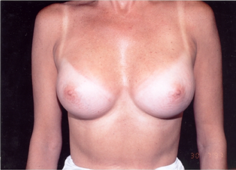 40-year-old woman treated with Breast Augmentation. after 341962