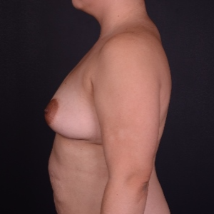 25-34 year old woman treated with Mentor Breast Implants before 3240097