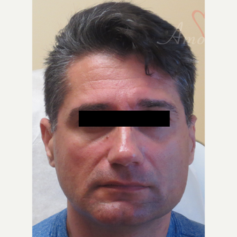 45-54 year old man treated with Voluma in the cheeks area before 3263721