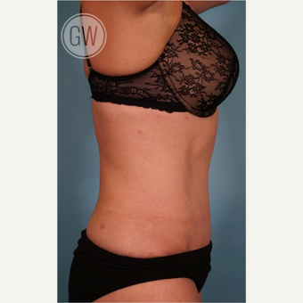 35-44 year old woman treated with Tummy Tuck after 3016624
