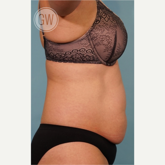 35-44 year old woman treated with Tummy Tuck before 3016624