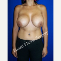25-34 year old woman treated with Breast Lift with Implants before 3334078