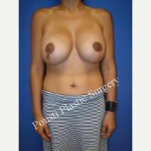 25-34 year old woman treated with Breast Lift with Implants after 3334078