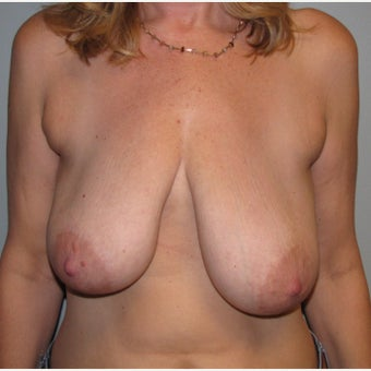 45-54 year old woman treated with Breast Reconstruction before 2004412