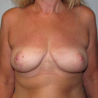 45-54 year old woman treated with Breast Reconstruction after 2004412