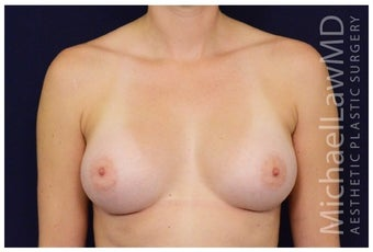 Breast Augmentation after 1326146