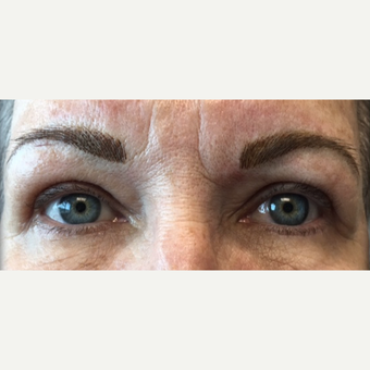 57 year old woman treated with Eyelid Surgery after 3490231