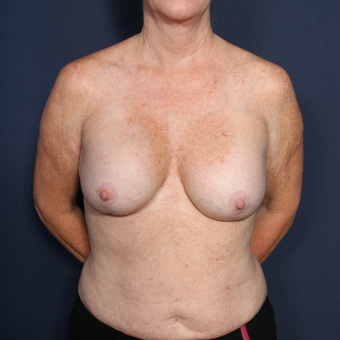 55-64 year old woman treated with Breast Implant Revision (view 1 of 2) before 3169407