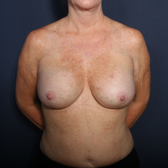 55-64 year old woman treated with Breast Implant Revision (view 1 of 2) after 3169407