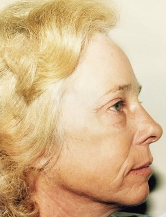 55-64 year old woman treated with Facelift and Browlift after 3310207