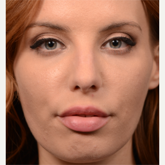 25-34 year old woman treated with Rhinoplasty before 3615762