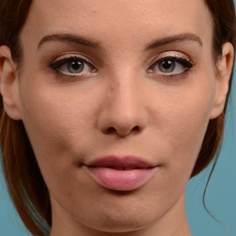 25-34 year old woman treated with Rhinoplasty after 3615762