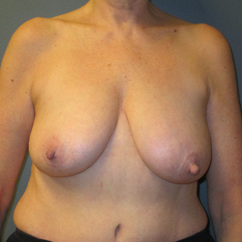 Breast Reduction with Anchor Pattern, Front View before 3744932