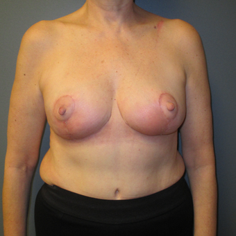 Breast Reduction with Anchor Pattern, Front View after 3744932