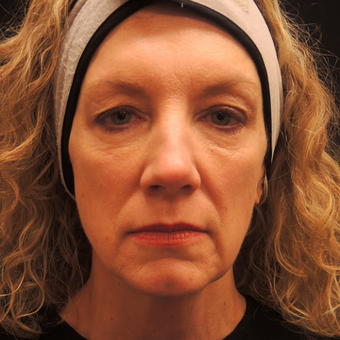 55-64 year old woman treated with Ultherapy before 3466621