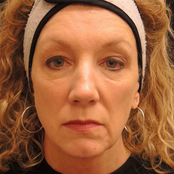55-64 year old woman treated with Ultherapy after 3466621