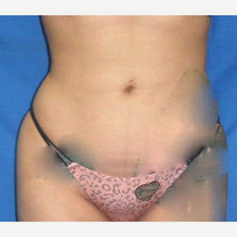 25-34 year old woman treated with Liposuction after 3071345