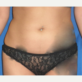 25-34 year old woman treated with Liposuction before 3071345