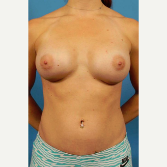 25-34 year old woman treated with Breast Implants after 3786967