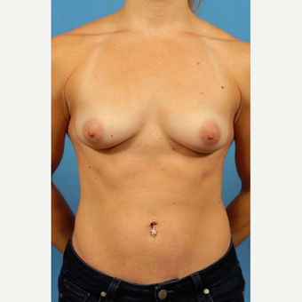 25-34 year old woman treated with Breast Implants before 3786967