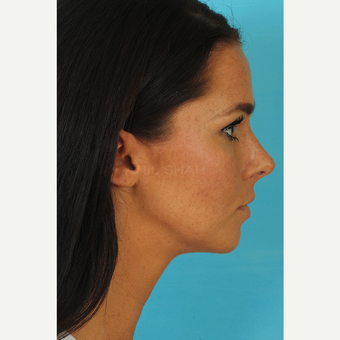25-34 year old woman treated with Rhinoplasty after 3629341
