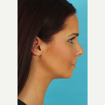 25-34 year old woman treated with Rhinoplasty before 3629341
