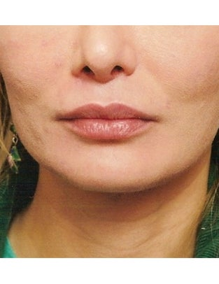 Lip Augmentation with Fat after 902758