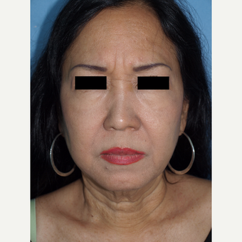 55-64 year old woman treated with Fat Transfers to Face and Facelift before 3194306