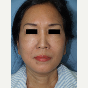 55-64 year old woman treated with Fat Transfers to Face and Facelift after 3194306