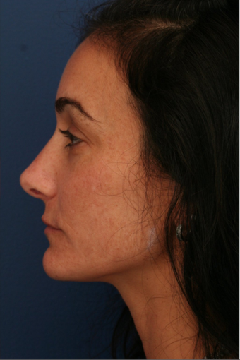 Rhinoplasty after 672810