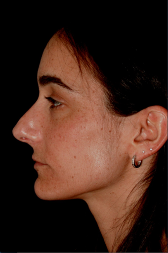 Rhinoplasty before 672810