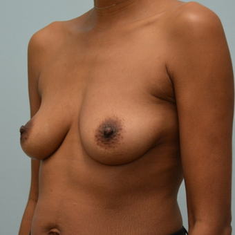 Breast Augmentation with Natrelle 410 Anatomically Shaped Implants before 2999338