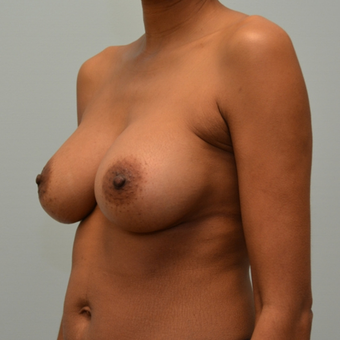 Breast Augmentation with Natrelle 410 Anatomically Shaped Implants after 2999338