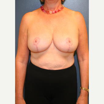 55-64 year old woman treated with Breast Reduction after 3476144