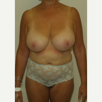 55-64 year old woman treated with Breast Reduction before 3476144