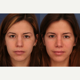25-34 year old woman treated with Rhinoplasty after 3698973