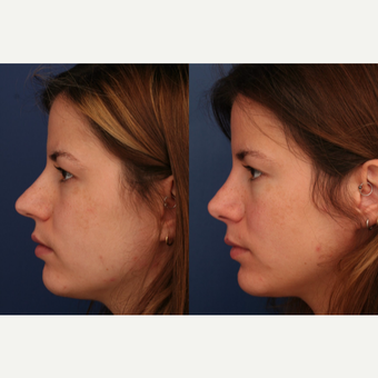 25-34 year old woman treated with Rhinoplasty before 3698973
