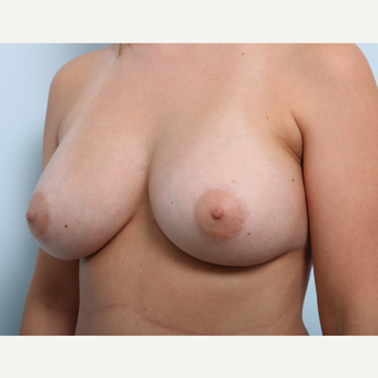 Breast Augmentation after 3508196
