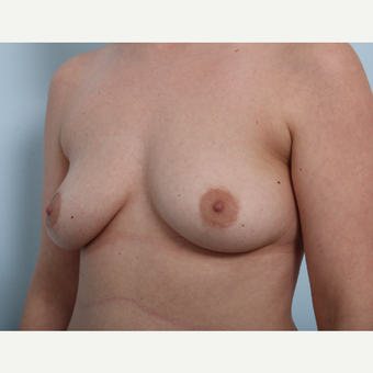 Breast Augmentation before 3508196