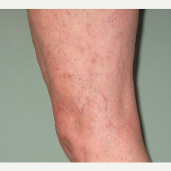 55-64 year old woman treated with Sclerotherapy after 2532674