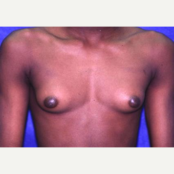 17 or under year old man treated with Male Breast Reduction before 3066252