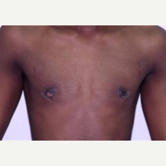 17 or under year old man treated with Male Breast Reduction after 3066252