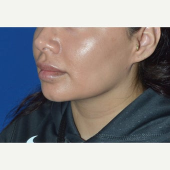 32 year old woman treated with Buccal Fat Removal and Neck Liposuction after 2150333
