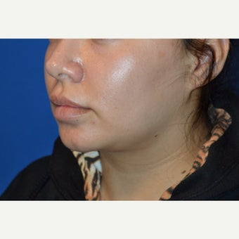 32 year old woman treated with Buccal Fat Removal and Neck Liposuction before 2150333